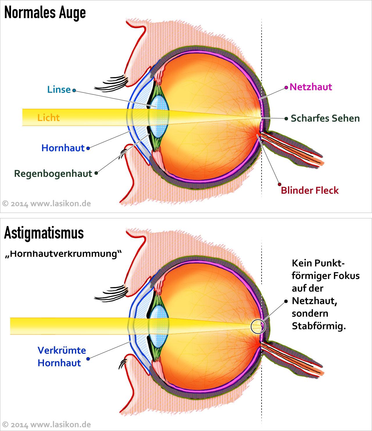 Wie die Kreise schwarz unter den Augen Videos zu entfernen
