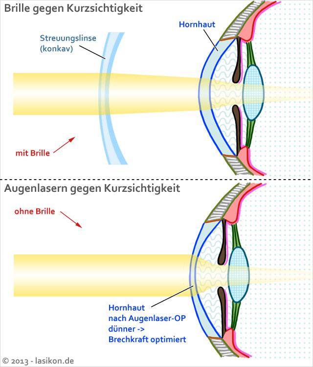 Diabetes: Augenlasern