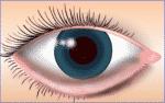 Augenlid Auswärtskehrung: Lid bleibt hängen / Ektropium