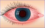 Bindehautentzündung: Therapie und Behandlung bei Allergie und anderen Ursachen
