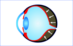Augenlasern Finanzierung - Ratenzahlung für Augen OP