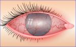 Hornhautentzündung: Wie lange dauert die Entzündung? Ansteckend oder vererbbar?
