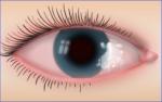Hornhautgeschwür Behandlungsdauer und Verlauf der Heilung