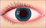 Lidrandentzündung: Ursachen und Behandlung bei Entzündungen der Augenlider