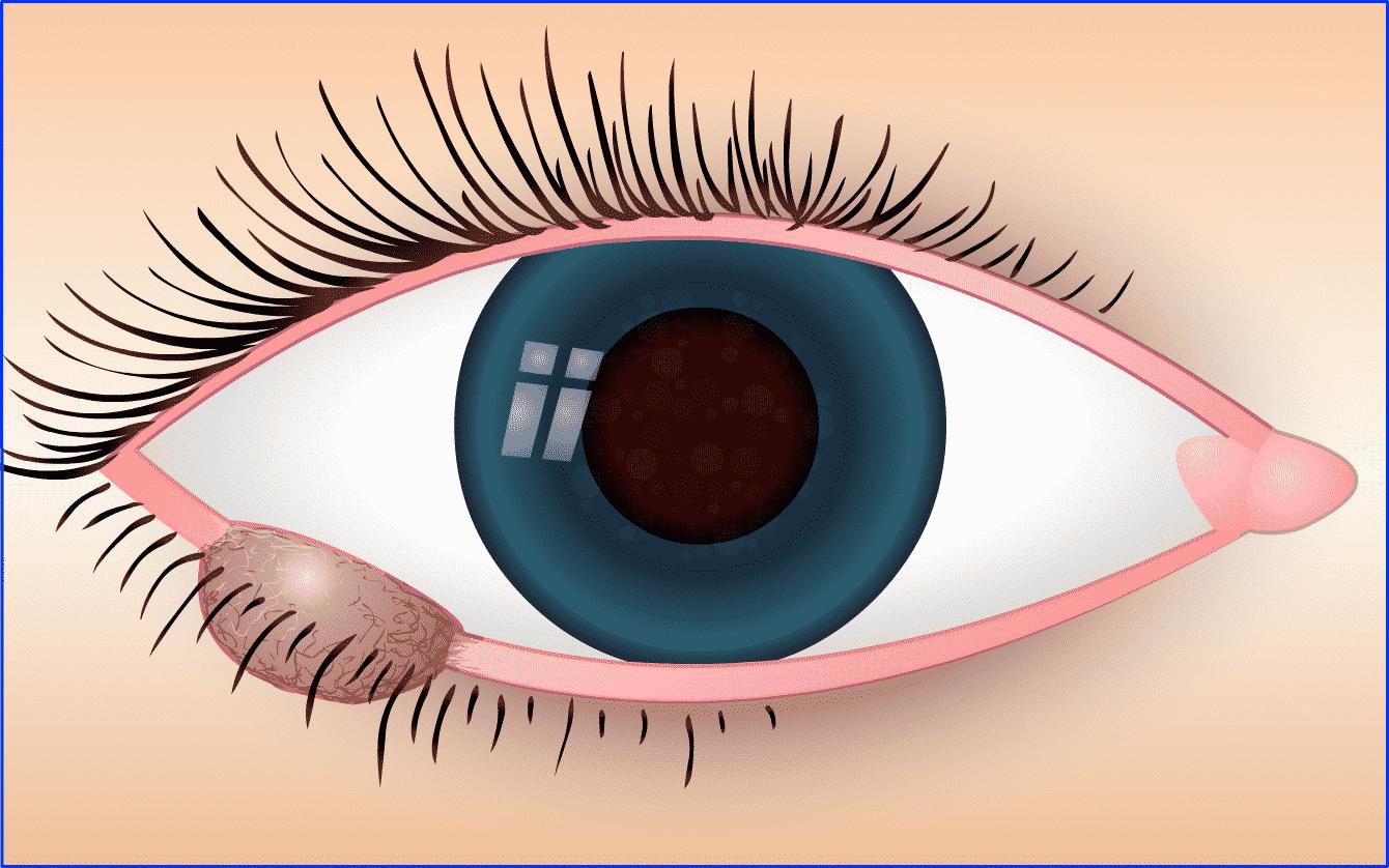 Augenlidtumor: Talgdrüsenkarzinom Wucherungen durch OP entfernen