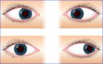 Ist Schielen heilbar? Schiel OP am Augen, Kosten und Erfolgsaussichten